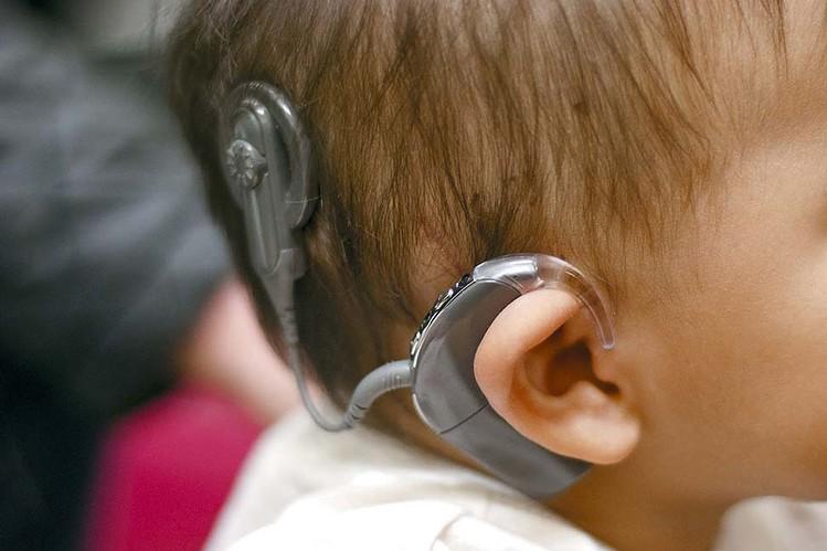 cochlear implant malaysia